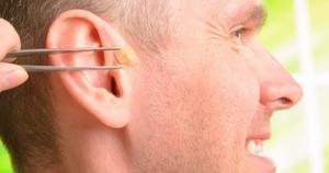 Reflexoterapia+Auricular
